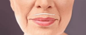 убрать морщины над губой